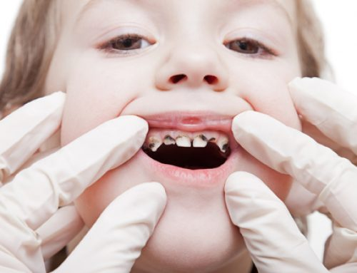 Rotten teeth in children