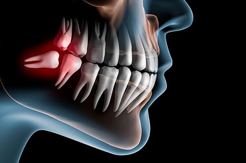 Wisdom Teeth taste